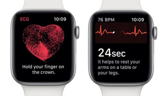 Apple Watch salva una vida tras el lanzamiento de ECG